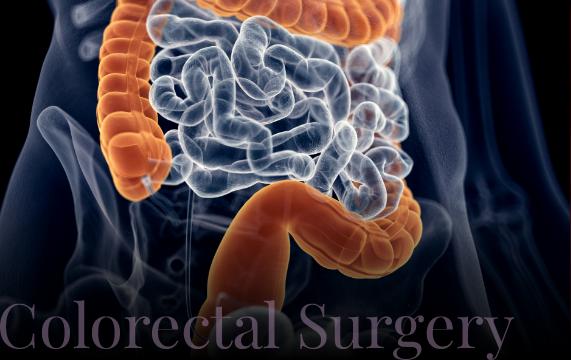 photo-our-services-colorectal-surgery@2x